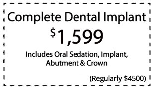 complete-dental-implant
